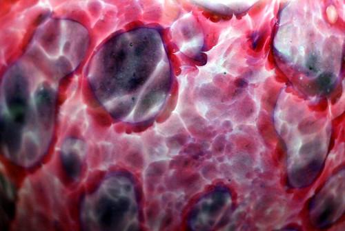 purple speckles