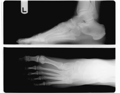 "20090312 - Clint - foot x-ray - left (""go..."