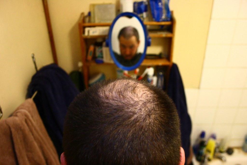 Hair Transplant India