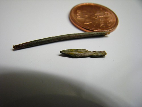 These Were IN My Leg!!