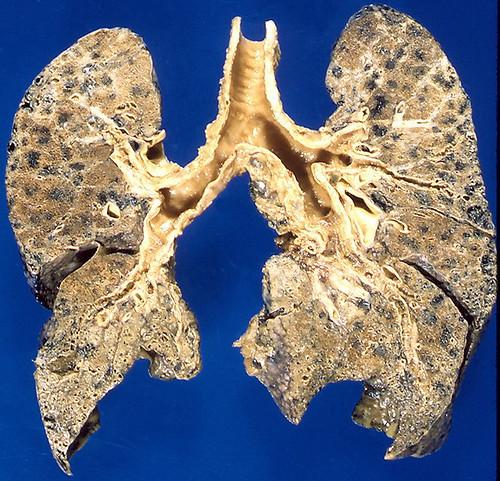 Emphysema, centrilobular