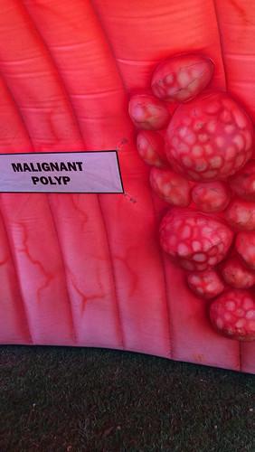 Malignant Polyp