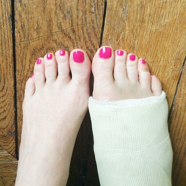 Rainy day pedicure, with bubble gum colored & scented polish! #ThingsToDoWithACastOnYourFoot