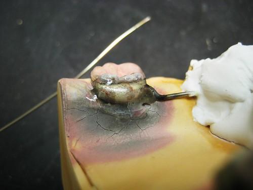 mandibular lingual arch SM, pt.4