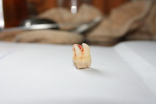 Muela del juicio - Wisdom Tooth