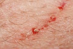 Skin and scratch