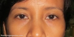 before the elianto firming & revitalizing eye zone treatment patch