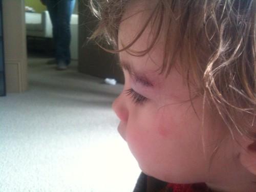 Hudson's 1st stitches