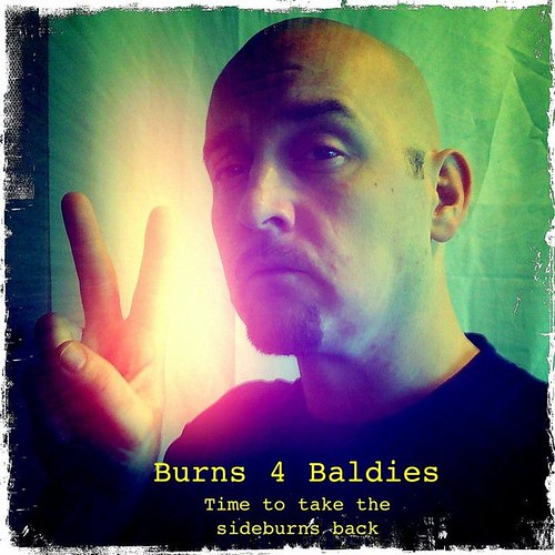 Burns for Baldies