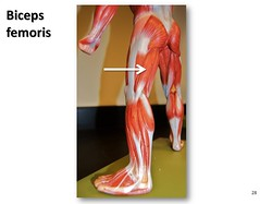 Biceps femoris - Muscles of the Lower Extremit...