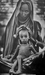 Ethiopean Famine