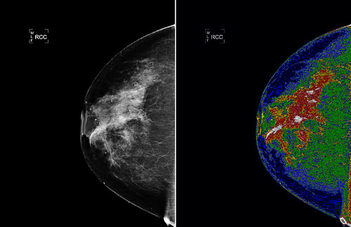 NASA Technology Could Aid in Interpretation of Mammograms
