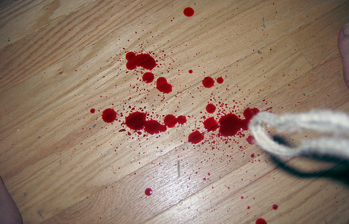 20100625 - Clint's scissor injury - IMG_1020 - bloody floor