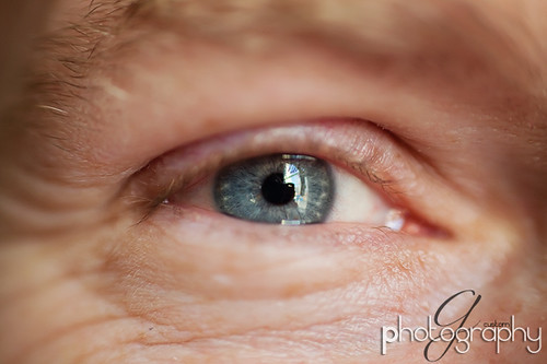 rich's eye2