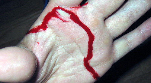 20100625 - Clint's scissor injury - IMG_1018 - hand cut