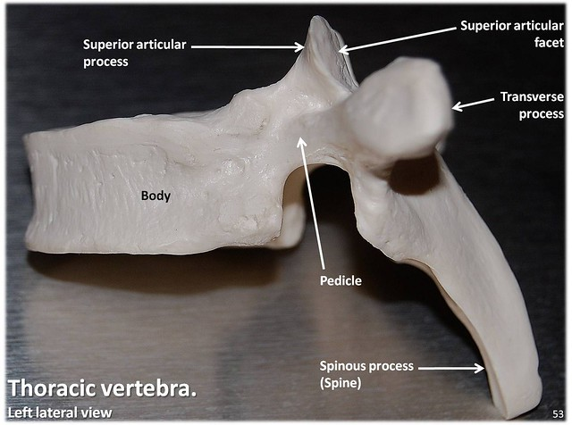 Thoracic Vertebra Lateral View With Labels