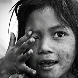 Hope for poor children!