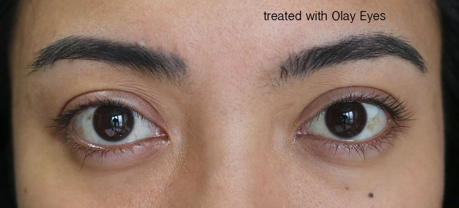8 Olay Eyes Review Photos Before and After - She Sings Beauty by Gen-zel Habab