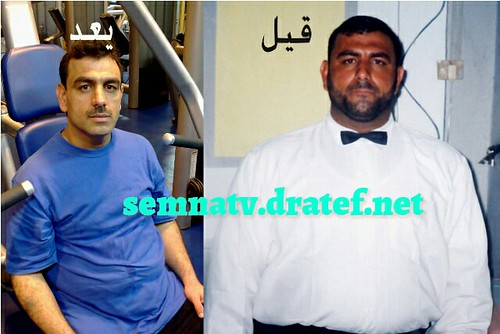 semnatv  semna (obesity ) tv app تطبيق تليفزيون السمنه  July 14, 2017  All what you want to know about obesity and means of weight loss, whether surgical or non - surgical also indiactions and complications of every method ....also the app include many ot  semnatv  semna (weight problems ) television app تطبيق تليفزيون السمنه  July 14, 2017  All what you wish to find out about weight problems and technique of weight reduction, whether or not surgical or non – surgical additionally indiactions and problems of each technique ….additionally the app embody many ot 35122582974 8098393e28
