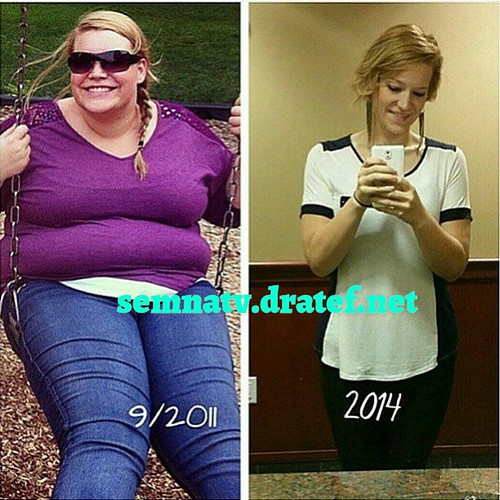 semnatv  semna (obesity ) tv app تطبيق تليفزيون السمنه  July 14, 2017  All what you want to know about obesity and means of weight loss, whether surgical or non - surgical also indiactions and complications of every method ....also the app include many ot  semnatv  semna (weight problems ) television app تطبيق تليفزيون السمنه  July 14, 2017  All what you need to learn about weight problems and technique of weight reduction, whether or not surgical or non – surgical additionally indiactions and problems of each methodology ….additionally the app embody many ot 35962802925 cf721614c6