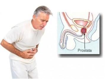 Obat Prostat Paling Ampuh