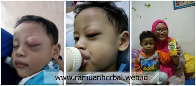 Obat Tumor Mata Anak