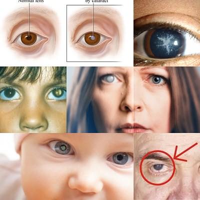 Obat Mata Katarak Tanpa Operasi