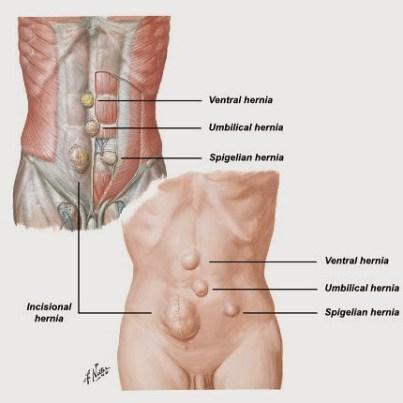 Ramuan Obat Herbal Penyakit Hernia