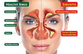 Cara Mengatasi Sinusitis Akut