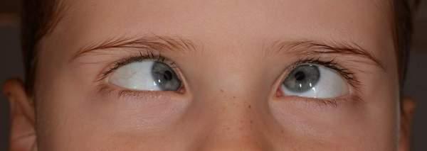 Cara Pakai QnC Jelly Gamat Untuk Pengobatan Mata Juling
