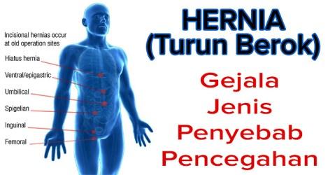 Obat Hernia Paling Ampuh Tanpa Operasi