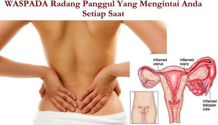 Cara Mengatasi Radang Panggul, di apotik pelvic inflammatory medicine