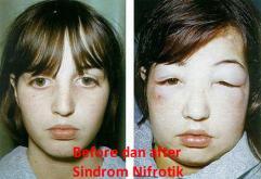 Apakah Sindrom Nefrotik Bisa Disembuhkan