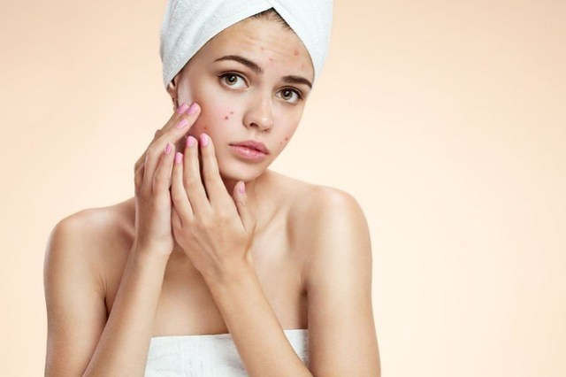 manage-hormonal-acne-1