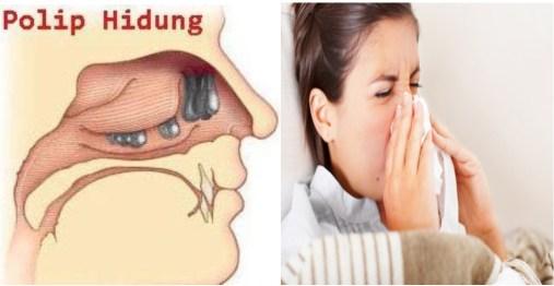 Cara Mengobati Polip Hidung Tanpa Operasi