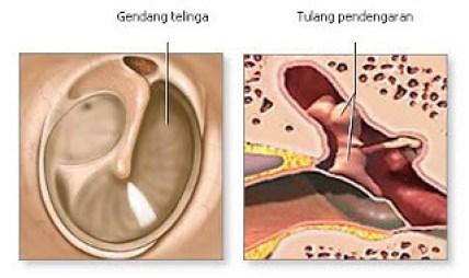 Obat Herbal Untuk Gendang Telinga Berlubang