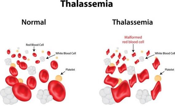 Obat Herbal Thalasemia Paling Ampuh