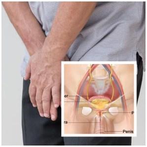 Resiko Operasi Prostat Pada Usia Lanjut