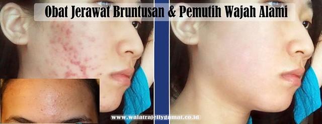 Obat Jerawat Bruntusan