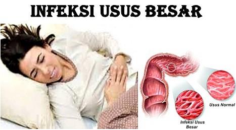 Obat Tradisional Infeksi Usus besar 100% Terbukti Paling Ampuh