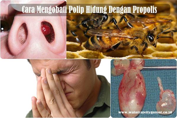 Cara Mengobati Polip Hidung Dengan Propolis
