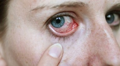 Obat Alami Keratitis Mata