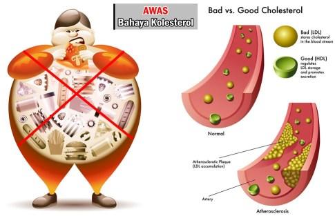 Cara Turunkan Kolesterol Tanpa Obat