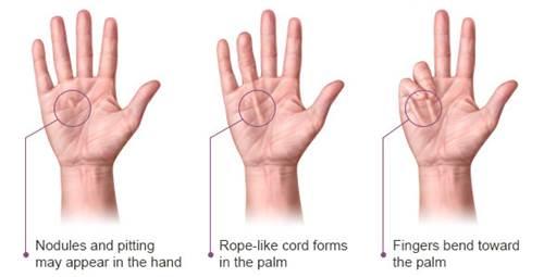 Contracture dupuytren penyebab umum jari tangan terasa kaku