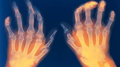 Rheumathoid arthritis pada jari tangan