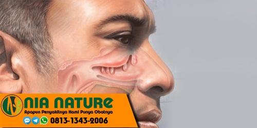 Obat Polip Hidung