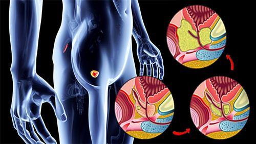 Gejala dan Faktor Penyebab Penyakit Kanker Prostat