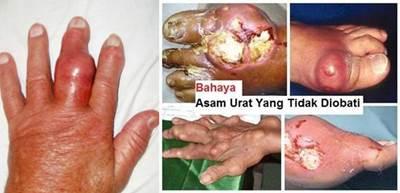 penyebab jari tangan kaku dan bengkak