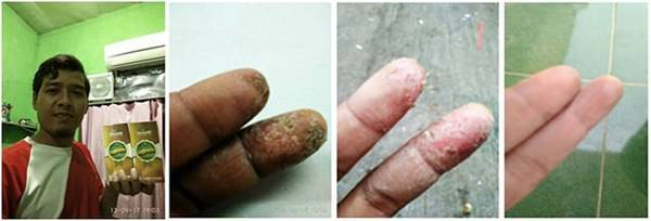 Testimoni QnC Jelly Gamat herbal ahlinya atasi masalah kulit