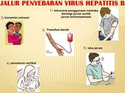 Virus hepatitis B mudah sekali menular